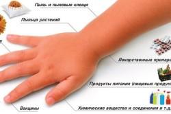Возможные причины аллергии