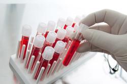 Общий анализ крови как первый этап определения иммунного статуса