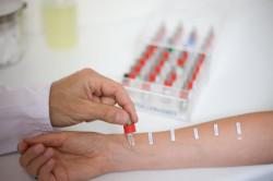 Кожные тесты для диагностики аллергии