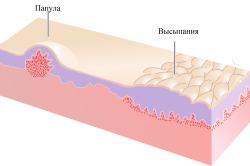 Аллергия на крем что делать