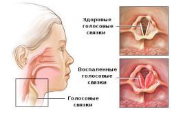 Симптомы ларингита