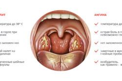 Симптомы тонзиллита и ангины
