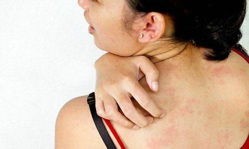 Проблема аллергии на коже