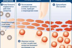 Схема развития аллергии