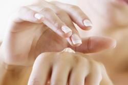 Аллергия на крем для рук