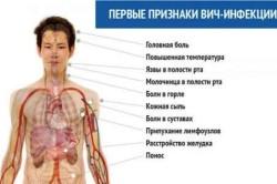Первые симптомы ВИЧ-инфекции