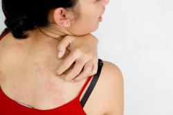 Крапивница - причина аллергической сыпи на коже