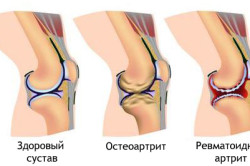 Ревматоидный артрит в пожилом возрасте