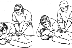 Сердечно-легочная реанимация при потере сознания