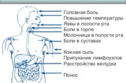 Первые признаки инфекции