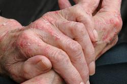 Как избавиться от аллергии на руках