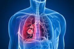 Злокачественные опухоли в легких у курильщиков